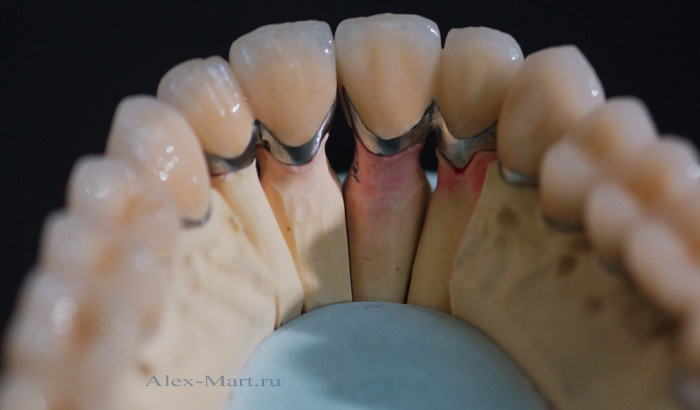 что такое зубные виниры и вкладки