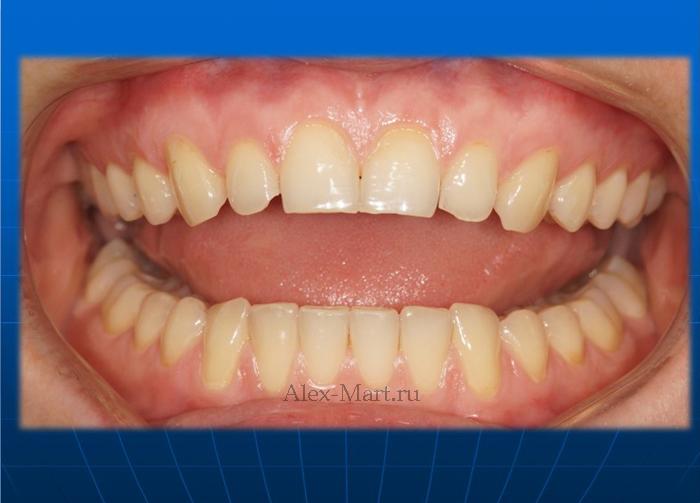 виниры без обточки зубов