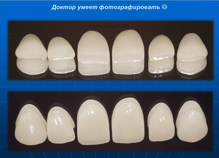 накладные виниры на зубы отзывы